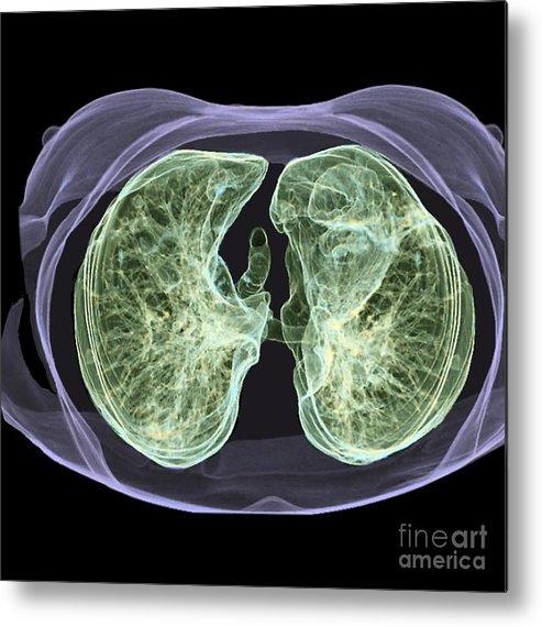 Healthy Lungs 3d Ct Scan Metal Print By Zephyr