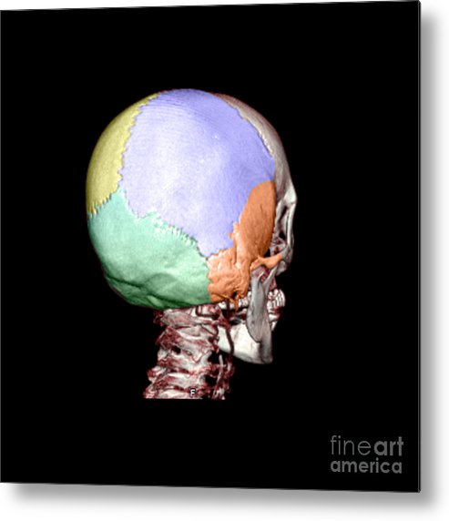 Head Metal Print featuring the photograph Human Skull by Medical Body Scans