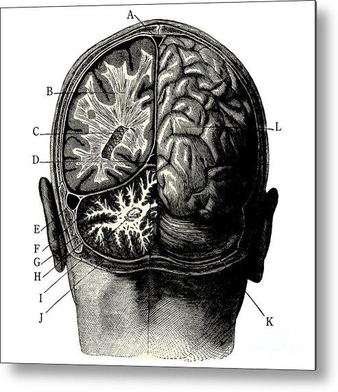 Engraving Metal Print featuring the digital art Humain Brain -vintage Engraved by Lynea