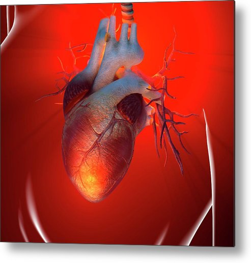 Event Metal Print featuring the digital art Heart Attack, Conceptual Artwork by Science Photo Library - Roger Harris