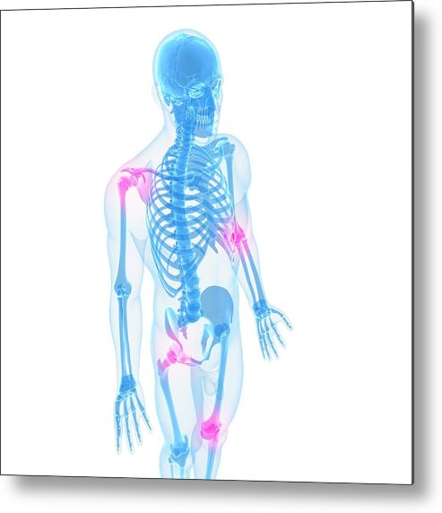 White Background Metal Print featuring the digital art Joint Pain, Conceptual Artwork by Sciepro