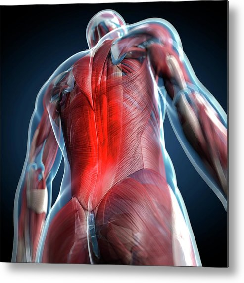 Physiology Metal Print featuring the digital art Back Pain, Conceptual Artwork by Science Photo Library - Sciepro