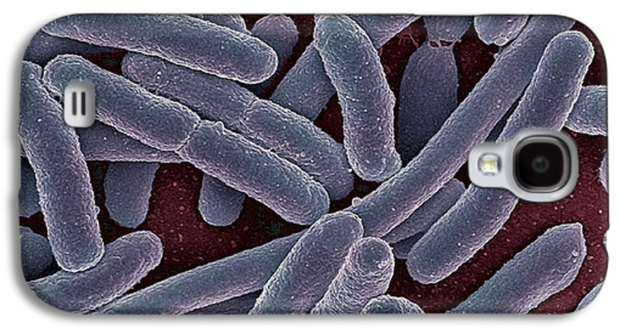 Escherichia Coli Galaxy S4 Case featuring the photograph E Coli Bacteria Sem by Ami Images