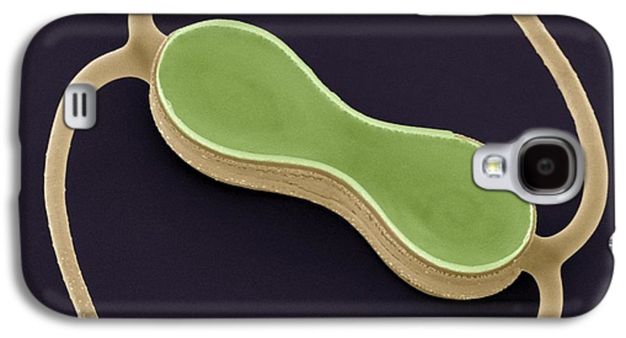 Alga Galaxy S4 Case featuring the photograph Diatom, Sem by Steve Gschmeissner