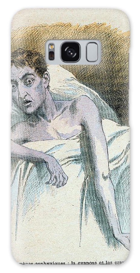 Cholera Galaxy Case featuring the photograph Patient In Typical Cholera Attitude by Universal History Archive/uig