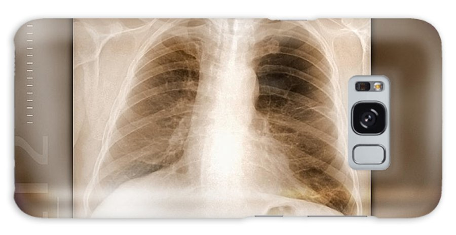 Bone Galaxy S8 Case featuring the photograph Heart And Lungs, X-ray by Miriam Maslo