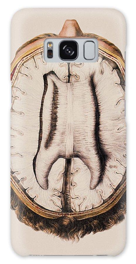 Cortex Galaxy S8 Case featuring the photograph Brain Anatomy by Mehau Kulyk