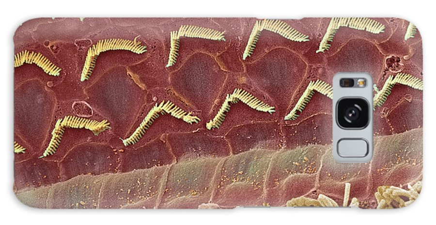 Magnified Image Galaxy S8 Case featuring the photograph Inner Ear Hair Cells, Sem by Steve Gschmeissner