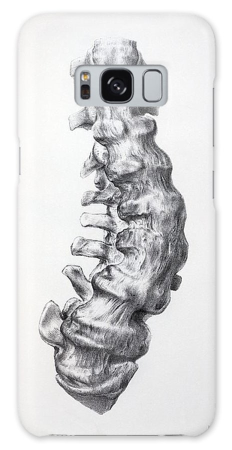 Arthritis Galaxy S8 Case featuring the photograph 1852 Gideon Mantell's Fused Spine by Paul D Stewart