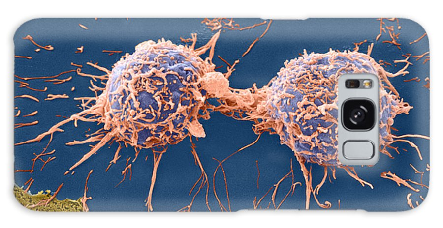 Cell Galaxy S8 Case featuring the photograph Coloured Sem Of Cervical Cancer Cells Dividing by Steve Gschmeissner