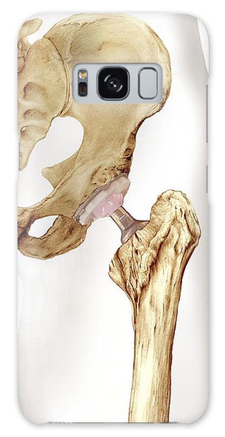 Bone Galaxy S8 Case featuring the photograph Hip Replacement, Artwork by D & L Graphics