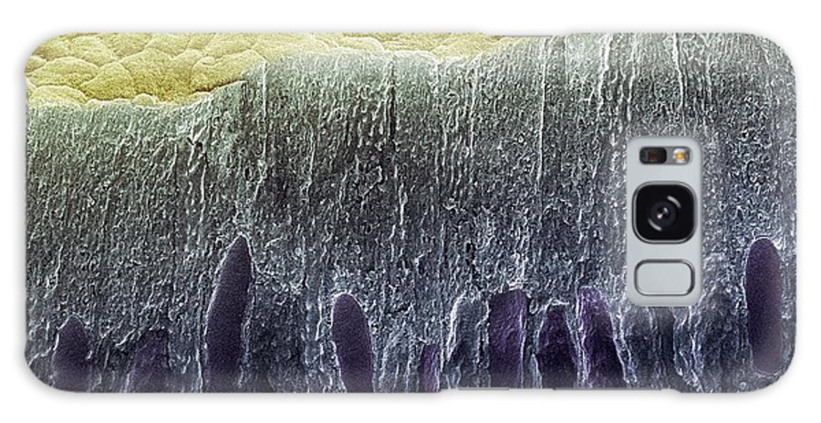 Ameloblast Galaxy S8 Case featuring the photograph Tooth Enamel Formation, Sem by Steve Gschmeissner