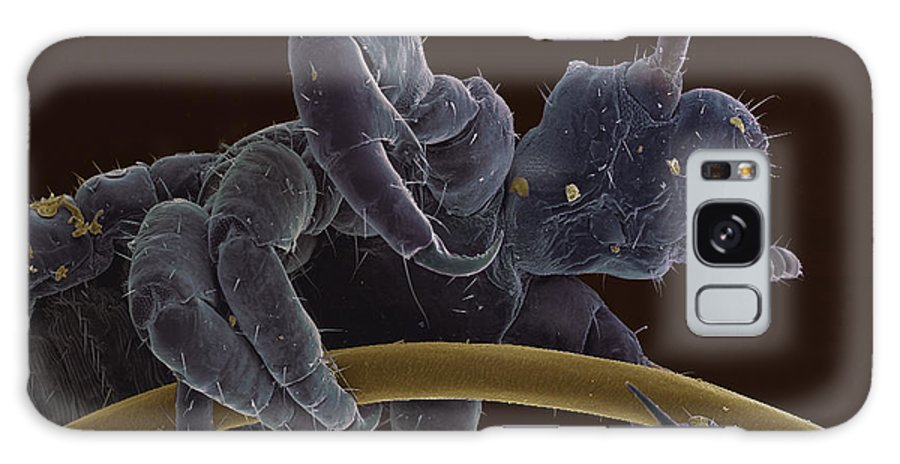 Pediculus Humanus Capitis Galaxy S8 Case featuring the photograph Head Louse, Sem by Steve Gschmeissner
