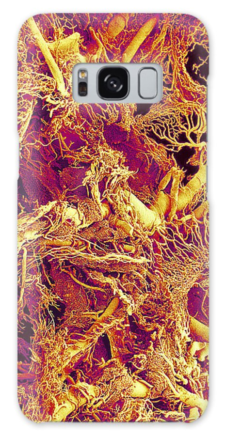 Vessel Galaxy S8 Case featuring the photograph Blood Vessels, Sem by Susumu Nishinaga