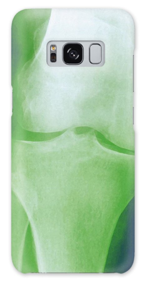 Arthrosis Galaxy S8 Case featuring the photograph Arthrosis Of The Knee, X-ray by Miriam Maslo