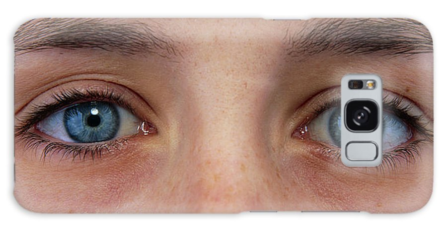 Eye Galaxy S8 Case featuring the photograph Close-up Of A Woman's Blue Eyes by Damien Lovegrove