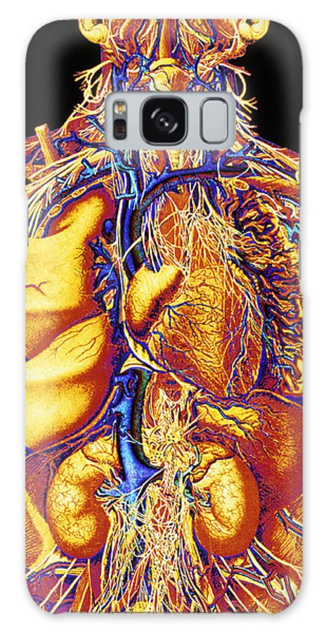 Abdomen Galaxy S8 Case featuring the photograph Colour Artwork Of Abdominal & Thoracic Nerves by Mehau Kulyk
