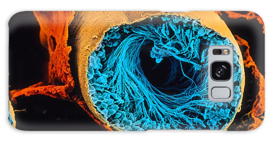 Magnified Image Galaxy S8 Case featuring the photograph Colour Sem Of Seminiferous Tubule Of The Testis by Cnri