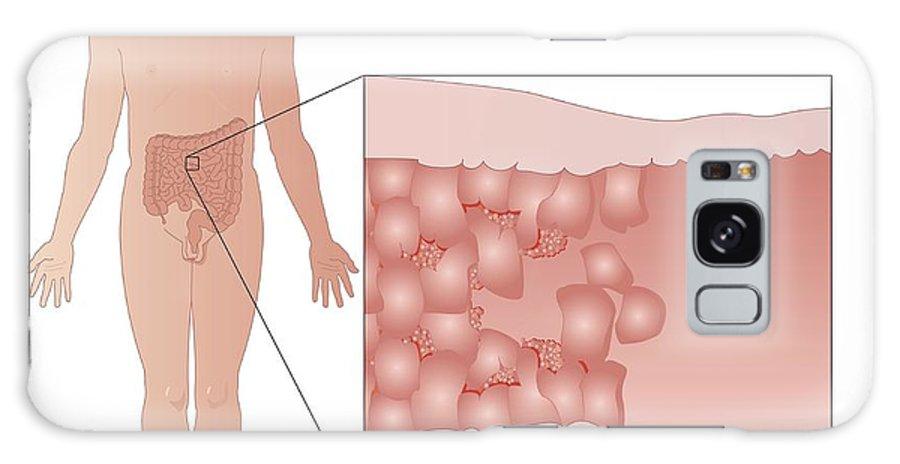 Crohn's Disease Galaxy S8 Case featuring the photograph Crohn's Disease, Artwork by Peter Gardiner