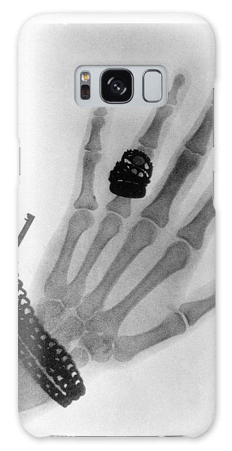 Photography Galaxy S8 Case featuring the photograph Early X-ray Photograph Of A Hand Taken In 1896 by