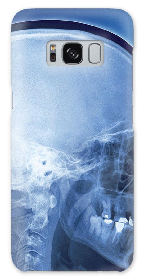 Skull Galaxy S8 Case featuring the photograph Healthy Skull, Coloured X-ray by Miriam Maslo