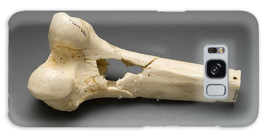 Science Galaxy S8 Case featuring the photograph Human Distal Femur, Gunshot Wound, 1984 by Science Source