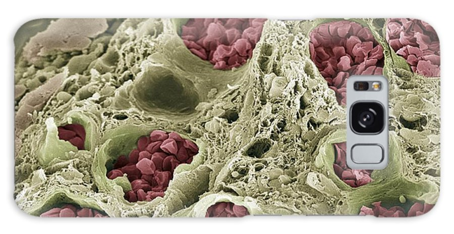 Red Blood Cell Galaxy S8 Case featuring the photograph Intestinal Blood Vessels, Sem by Steve Gschmeissner