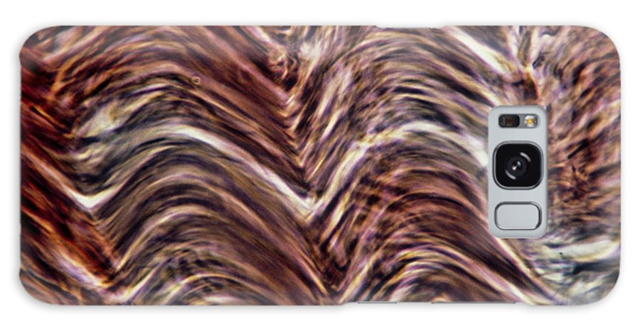 Human Body Galaxy S8 Case featuring the photograph Light Micrograph Of Smooth Muscle Tissue by Eric Grave