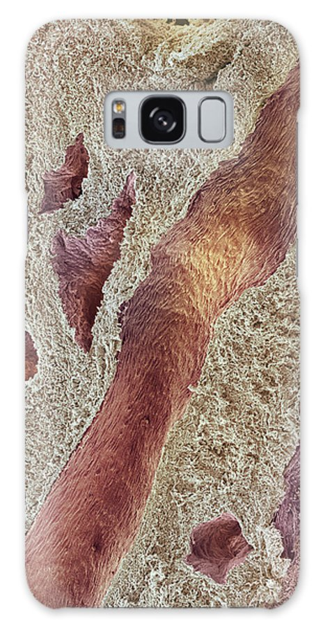 Blood Vessel Galaxy S8 Case featuring the photograph Ovarian Tissue, Sem by Steve Gschmeissner