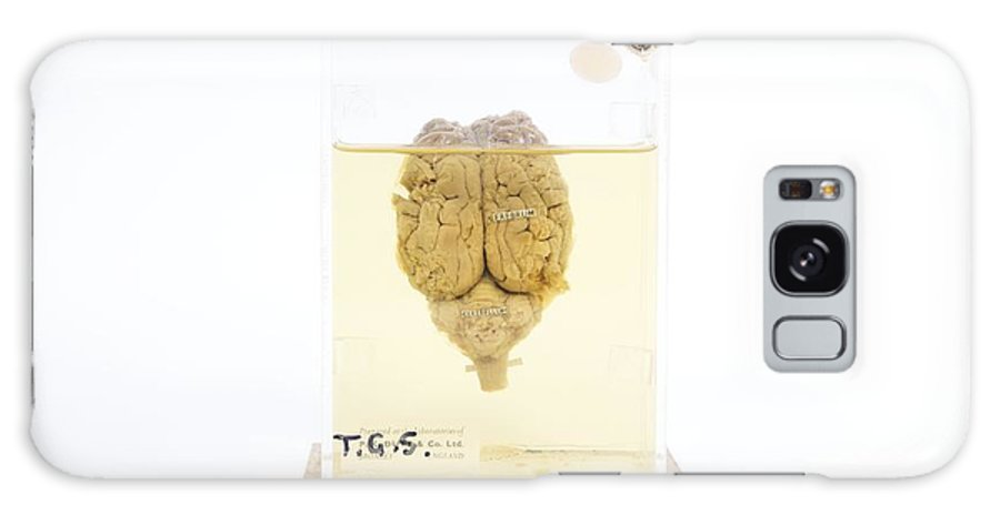 Brain Galaxy S8 Case featuring the photograph Preserved Sheep Brain by Gregory Davies, Medinet Photographics