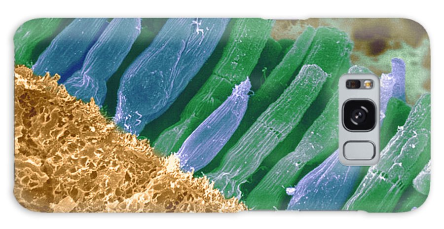Scanning Electron Micrograph Galaxy S8 Case featuring the photograph Rods And Cones In Retina by Omikron