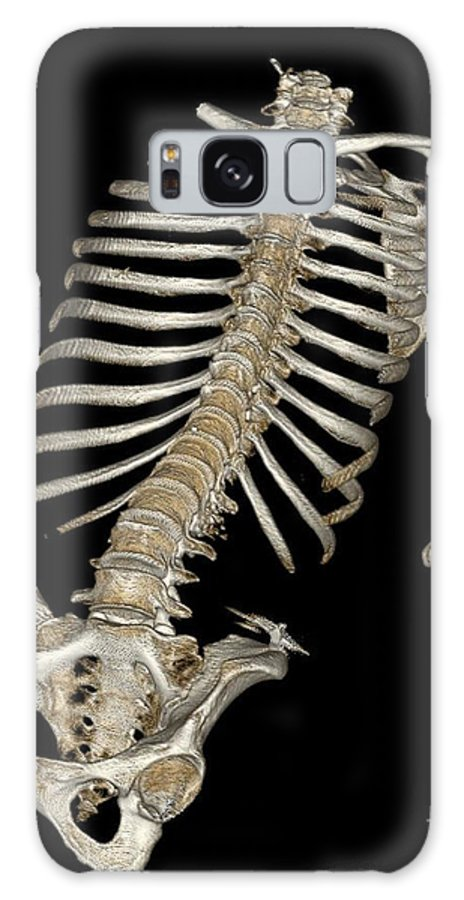 Science Galaxy S8 Case featuring the photograph Skeletal Reconstruction by Science Source