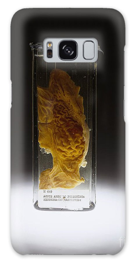 Science Galaxy S8 Case featuring the photograph Stomach, Hemorrhagic Gastritis, Arsenic by Science Source
