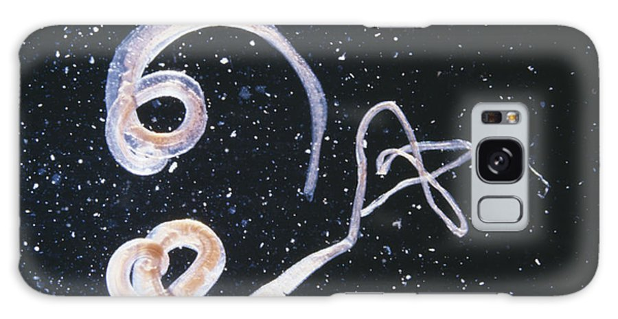Whipworm Galaxy S8 Case featuring the photograph Whipworm Parasites by Cnri