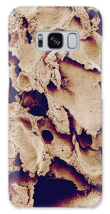 White Bread Galaxy S8 Case featuring the photograph White Bread, Sem by Susumu Nishinaga White Bread. Coloured Scanning Electron Micrograph