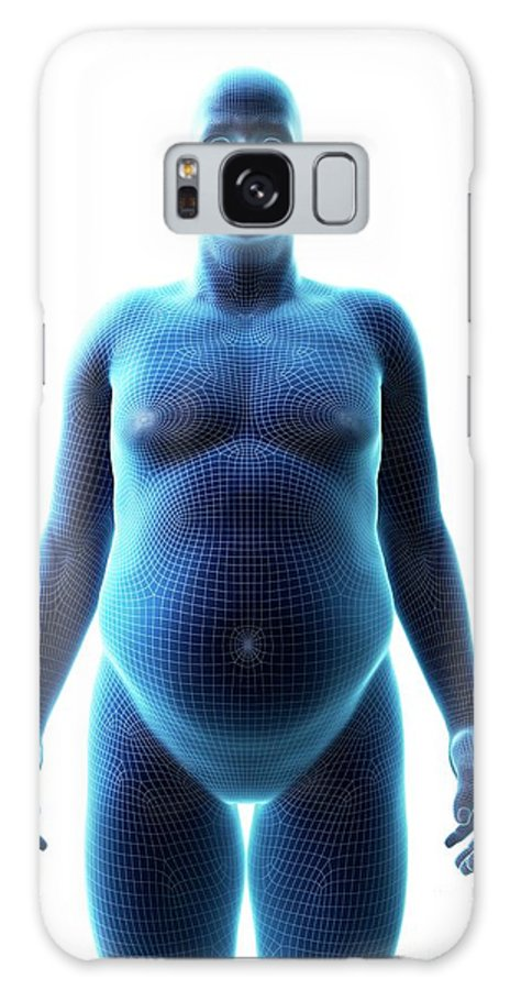 3d Galaxy Case featuring the photograph Obese Man by Sebastian Kaulitzki/science Photo Library