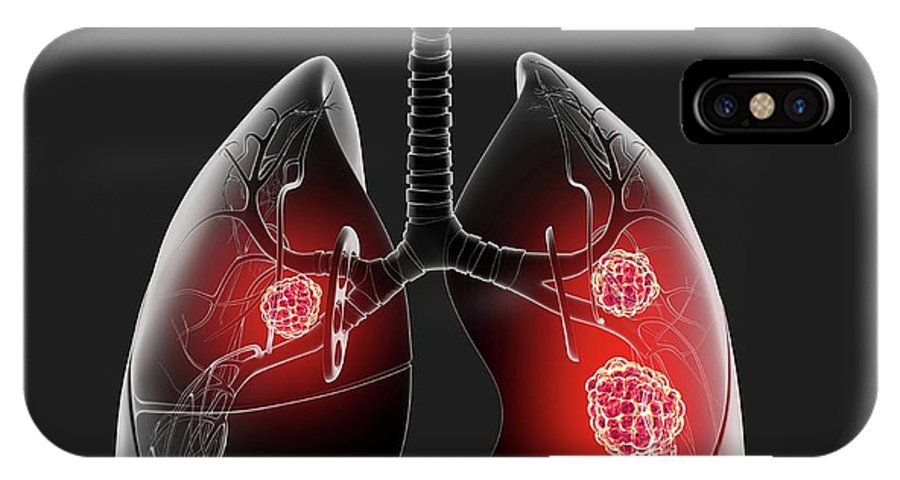 Artwork IPhone X Case featuring the photograph Lung Cancer by Pixologicstudio/science Photo Library