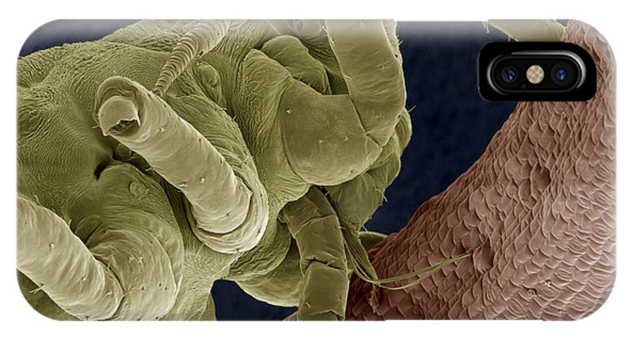 Animal IPhone X / XS Case featuring the photograph Aphid, Sem by Steve Gschmeissner