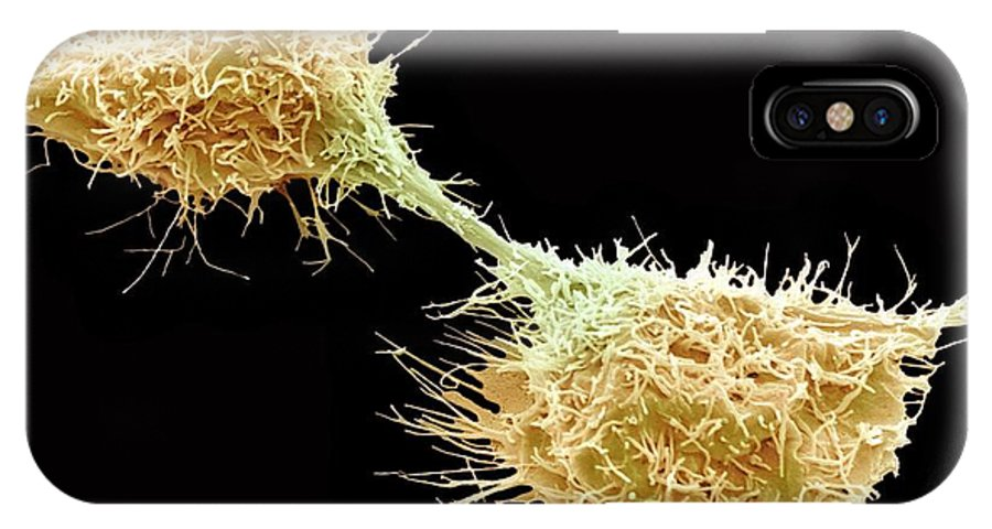 Bone IPhone X / XS Case featuring the photograph Dividing Fibrosarcoma Cells, Sem by Steve Gschmeissner