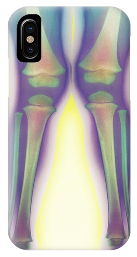 Knock-knee IPhone X / XS Case featuring the photograph Knock-knee, X-ray by Cnri