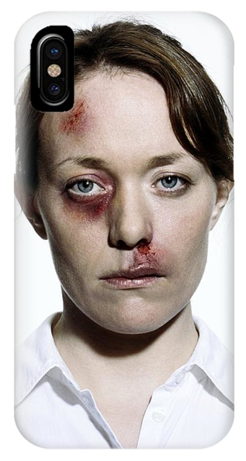 Human IPhone X / XS Case featuring the photograph Domestic Violence by Kevin Curtis
