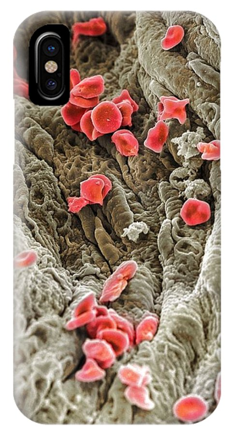 Red Blood Cell IPhone X Case featuring the photograph Red Blood Cells, Sem by