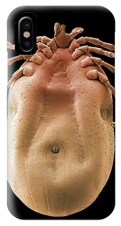 Rhipicephalus Sanguineus IPhone X Case featuring the photograph Brown Dog Tick, Sem by Steve Gschmeissner