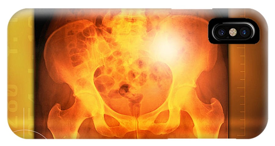 Hip IPhone X / XS Case featuring the photograph Female Pelvis, X-ray by Miriam Maslo