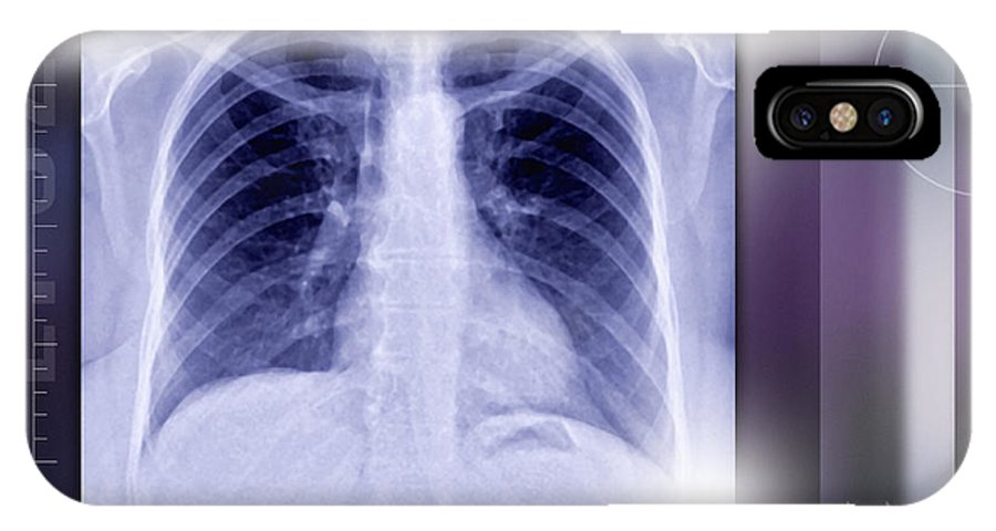 Bone IPhone X / XS Case featuring the photograph Heart And Lungs, X-ray by Miriam Maslo