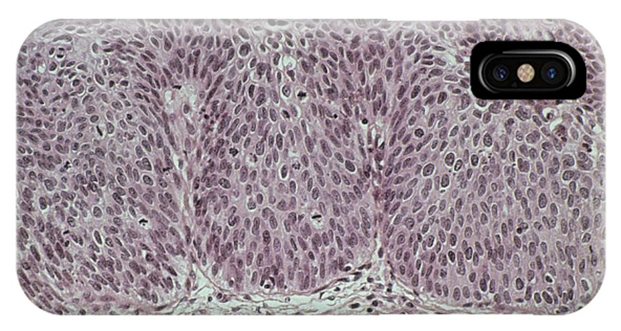 Cervix IPhone X / XS Case featuring the photograph Lm Of Grade IIi Cervical Intraepithelial Neoplasia by Dr. E. Walker