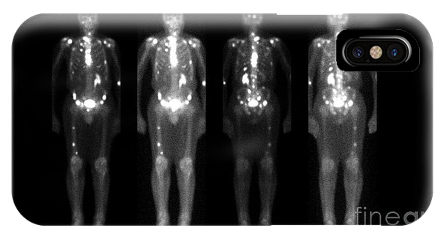 Nuclear Medicine IPhone X Case featuring the photograph Nuclear Medicine Bone Scan by Medical Body Scans