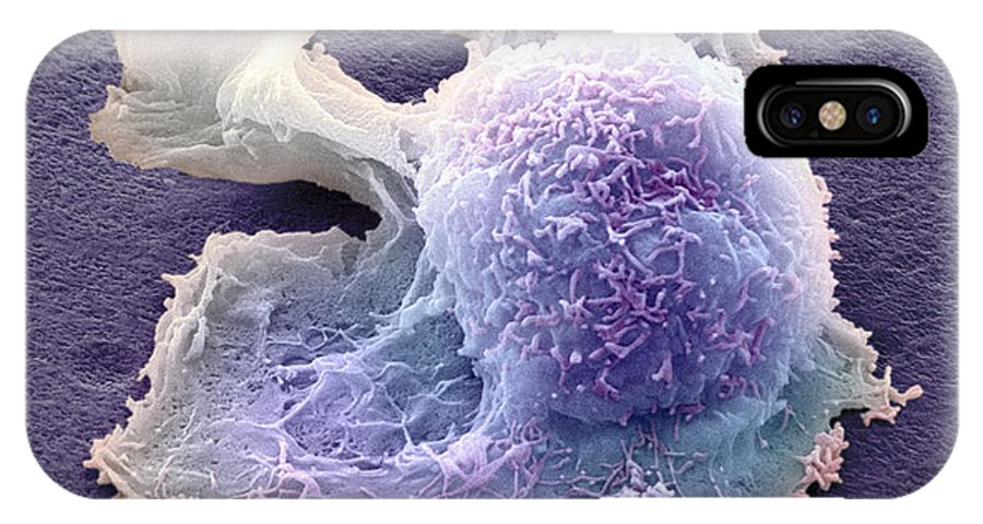 Sarcoma IPhone X Case featuring the photograph Sarcoma Cell, Sem by Steve Gschmeissner