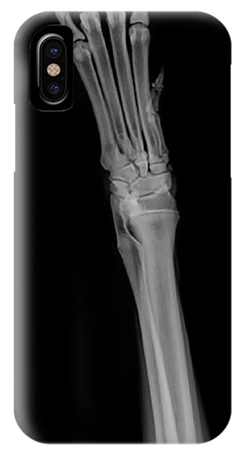 Dog IPhone X Case featuring the photograph X-ray Of A Dog's Front Right Leg by Yael Rosen