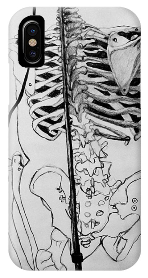 Bone IPhone X Case featuring the drawing Crackling Bones by Jean Haynes